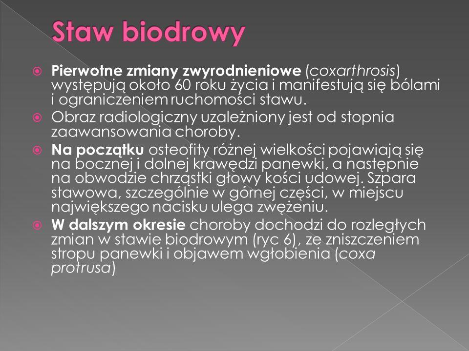 Staw biodrowy Pierwotne zmiany zwyrodnieniowe (coxarthrosis) występują około 60 roku życia i manifestują się bólami i ograniczeniem ruchomości stawu.