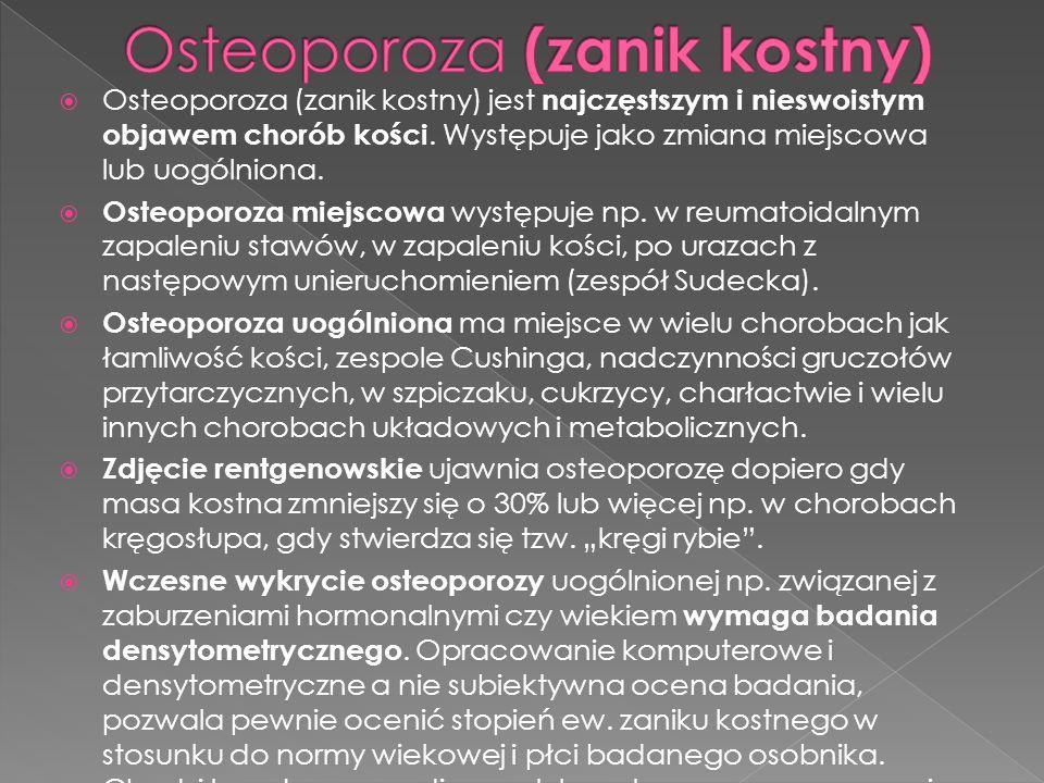 Osteoporoza (zanik kostny)