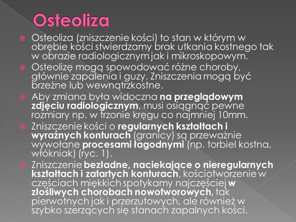 Osteoliza