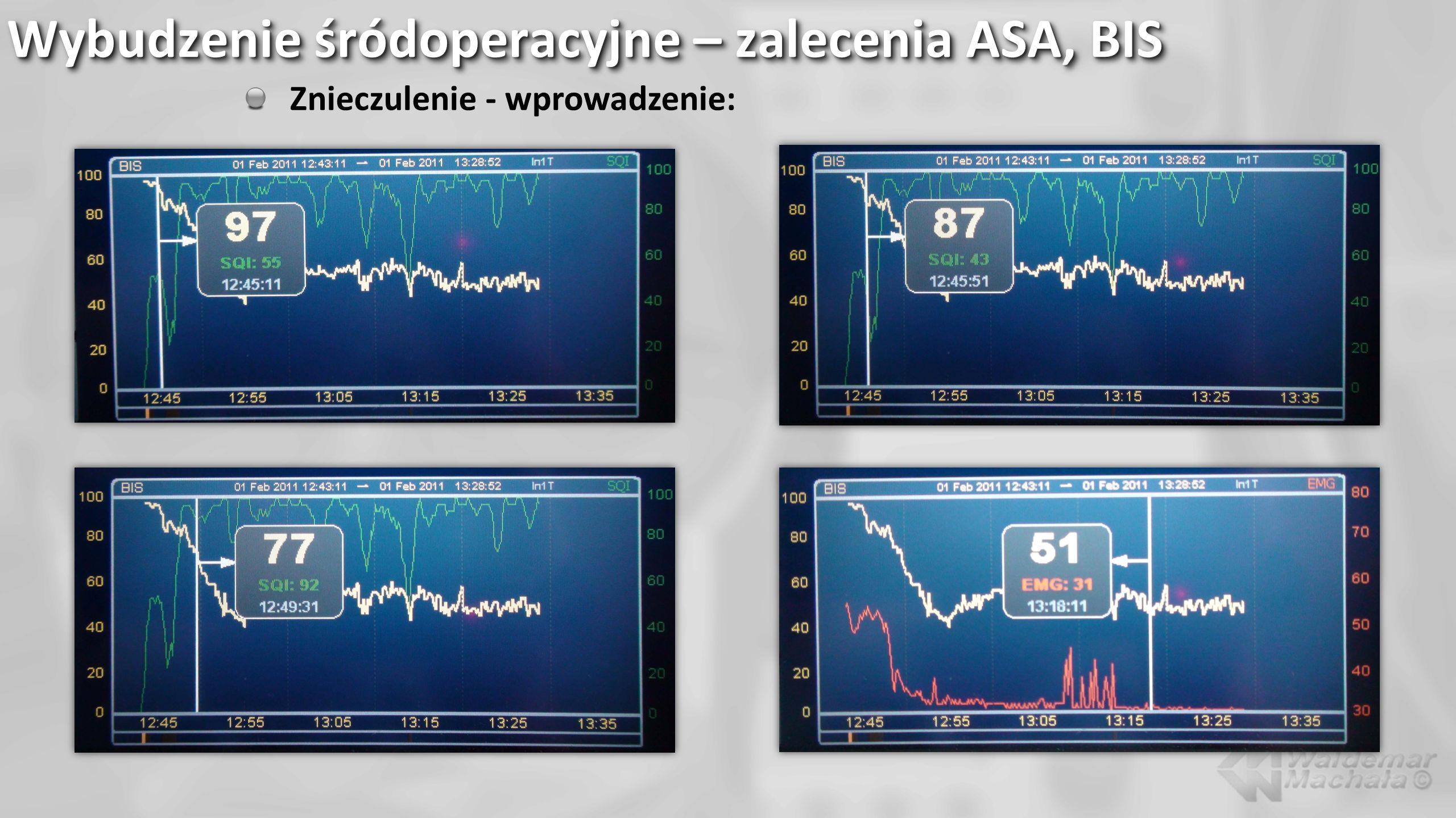 Wybudzenie śródoperacyjne – zalecenia ASA, BIS