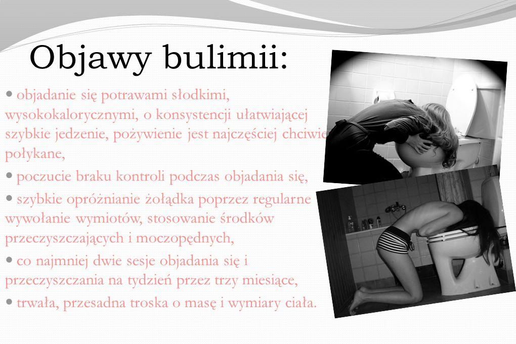 Objawy bulimii: