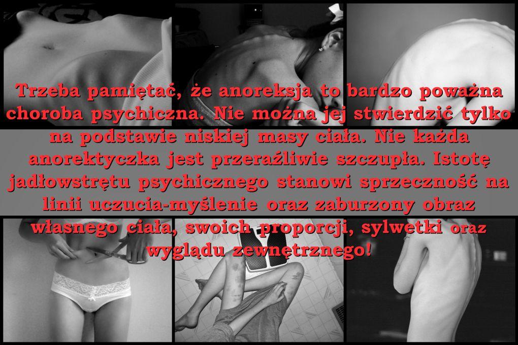 Trzeba pamiętać, że anoreksja to bardzo poważna choroba psychiczna