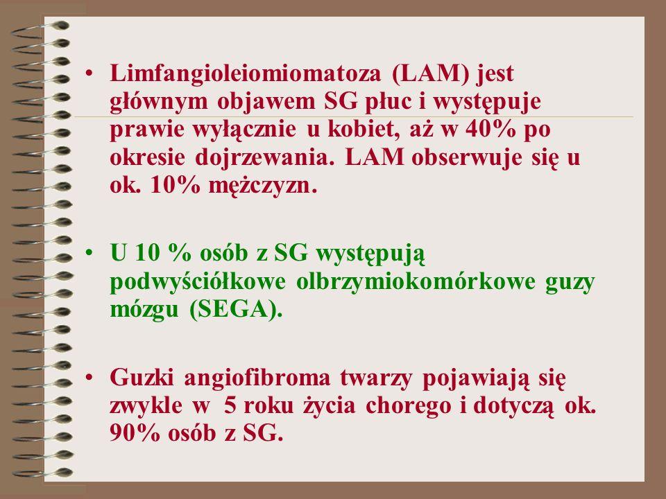 Limfangioleiomiomatoza (LAM) jest głównym objawem SG płuc i występuje prawie wyłącznie u kobiet, aż w 40% po okresie dojrzewania. LAM obserwuje się u ok. 10% mężczyzn.