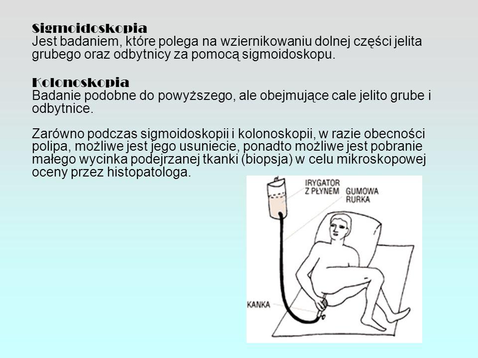 Sigmoidoskopia Jest badaniem, które polega na wziernikowaniu dolnej części jelita grubego oraz odbytnicy za pomocą sigmoidoskopu.