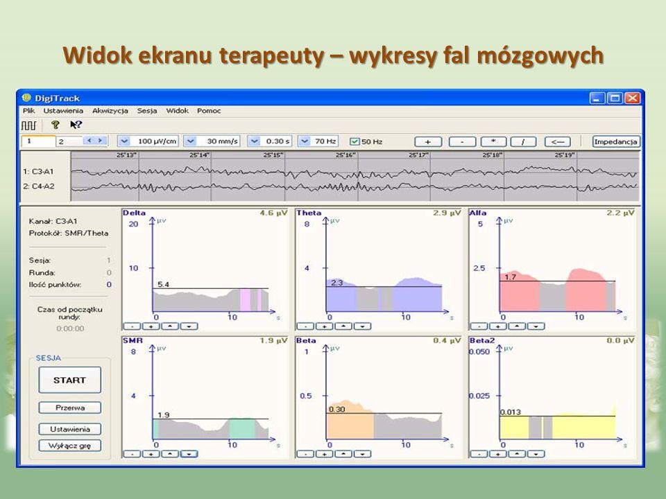 Widok ekranu terapeuty – wykresy fal mózgowych