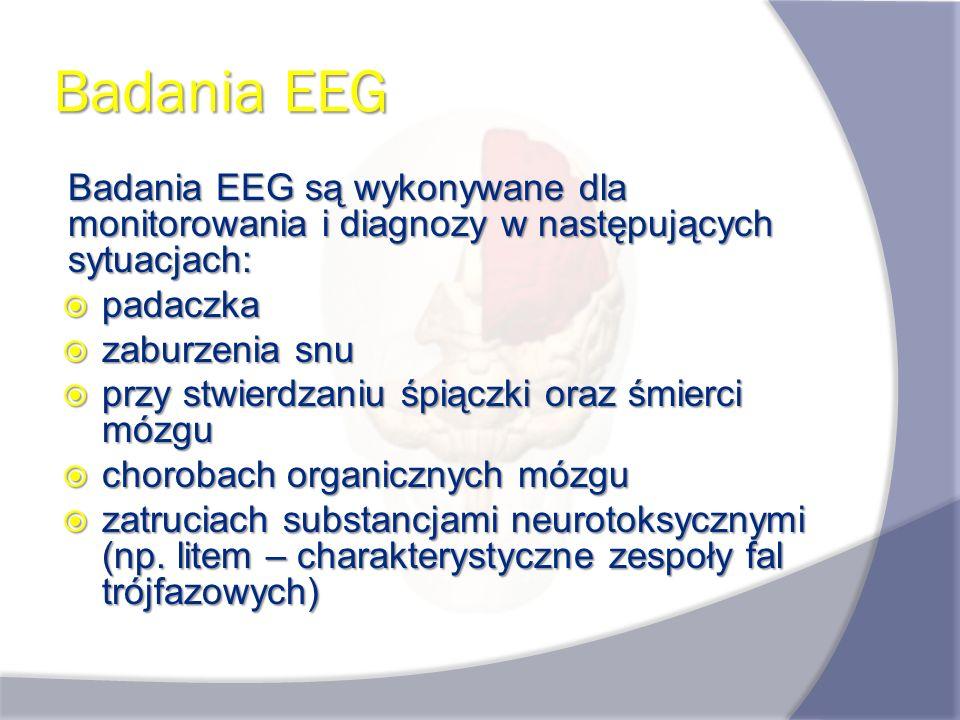 Badania EEG Badania EEG są wykonywane dla monitorowania i diagnozy w następujących sytuacjach: padaczka.
