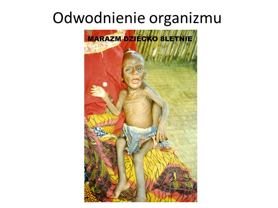 Odwodnienie organizmu