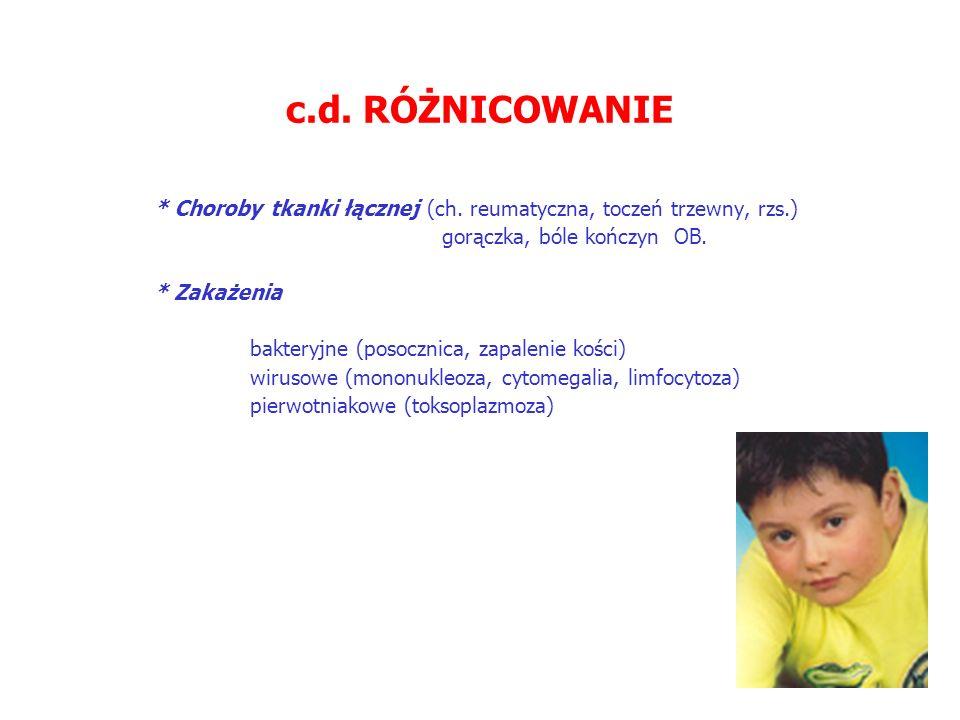 c.d. RÓŻNICOWANIE * Choroby tkanki łącznej (ch. reumatyczna, toczeń trzewny, rzs.) gorączka, bóle kończyn  OB.