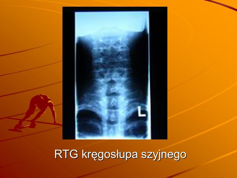 RTG kręgosłupa szyjnego