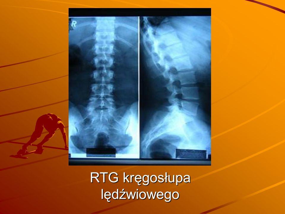 RTG kręgosłupa lędźwiowego