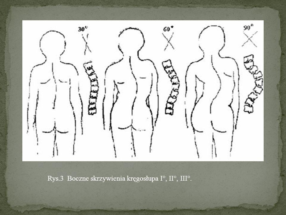 Rys.3 Boczne skrzywienia kręgosłupa I°, II°, III°.