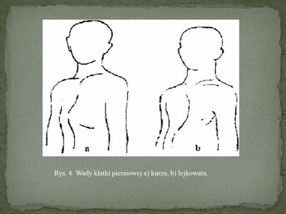 Rys. 4 Wady klatki piersiowej a) kurza, b) lejkowata.