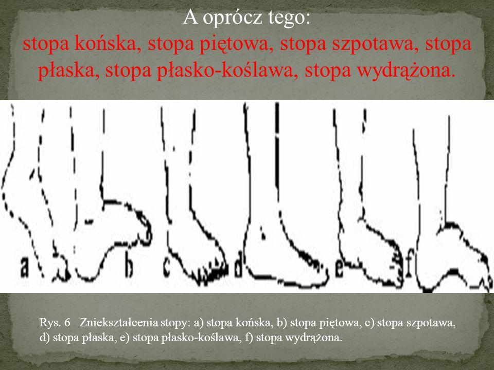 A oprócz tego: stopa końska, stopa piętowa, stopa szpotawa, stopa płaska, stopa płasko-koślawa, stopa wydrążona.