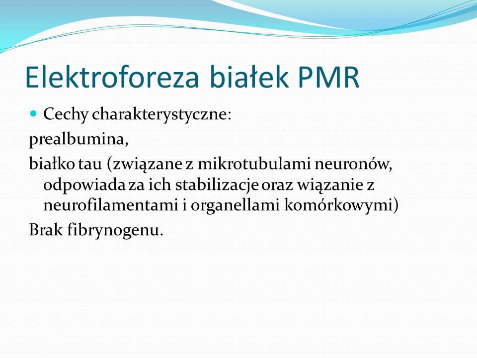 Elektroforeza białek PMR