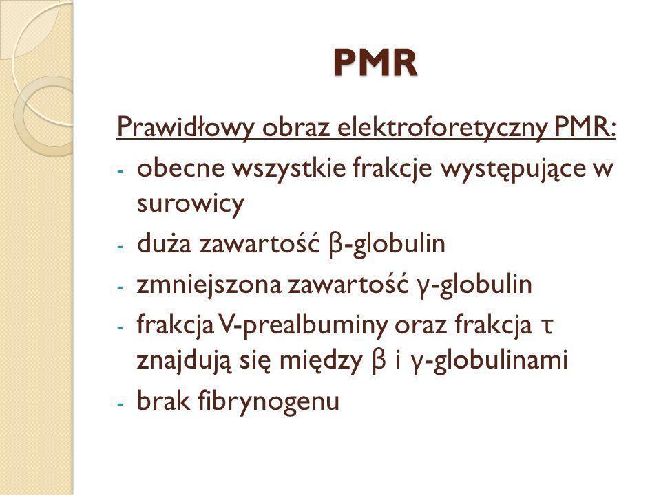 PMR Prawidłowy obraz elektroforetyczny PMR: