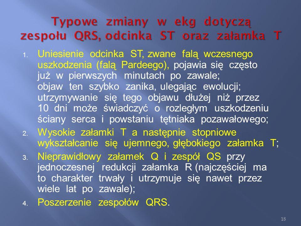 Typowe zmiany w ekg dotyczą zespołu QRS, odcinka ST oraz załamka T