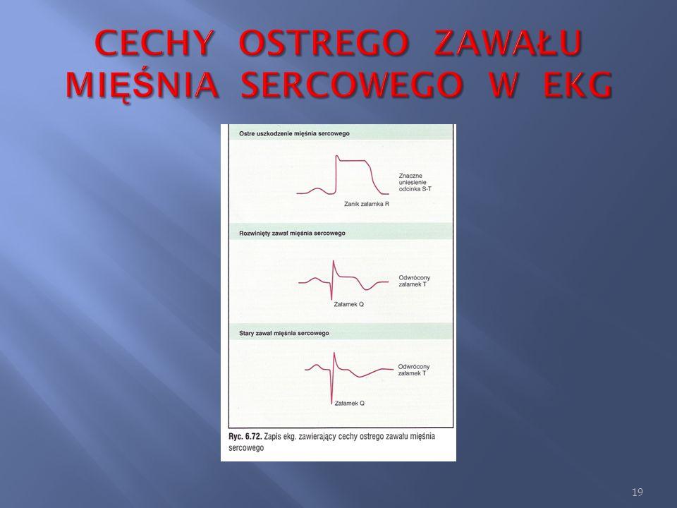 CECHY OSTREGO ZAWAŁU MIĘŚNIA SERCOWEGO W EKG