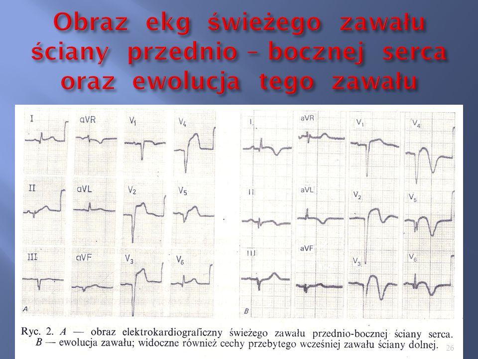 Obraz ekg świeżego zawału ściany przednio – bocznej serca oraz ewolucja tego zawału