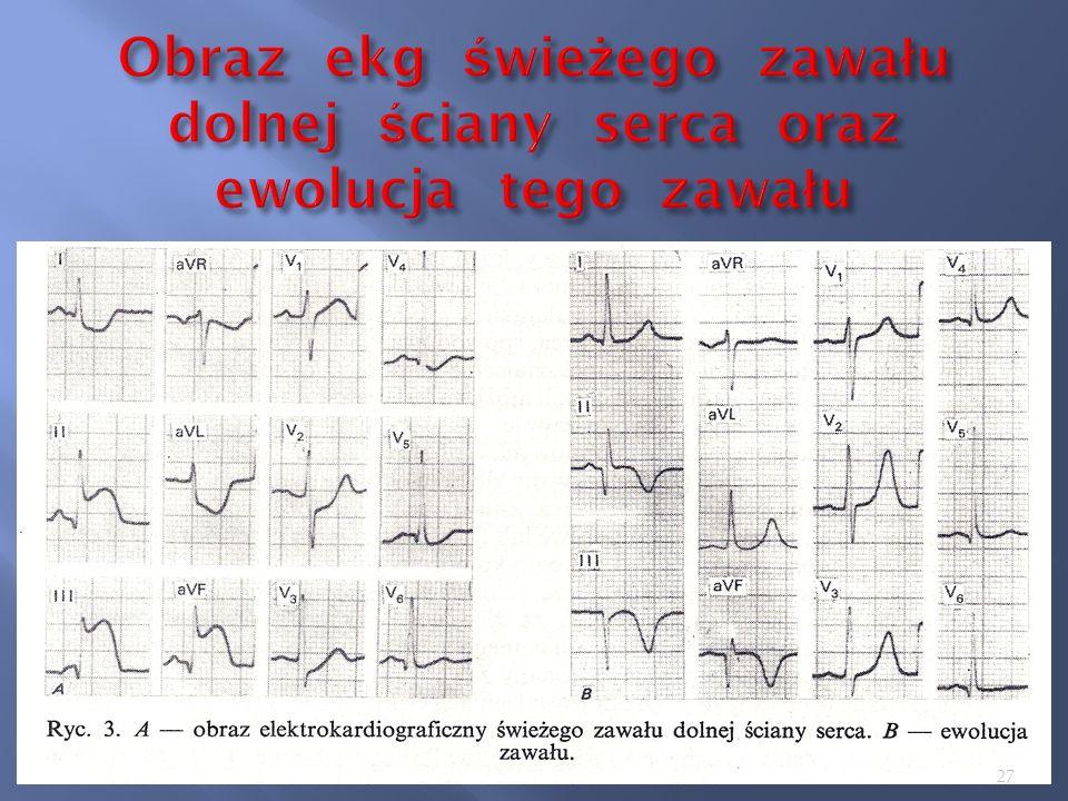 Obraz ekg świeżego zawału dolnej ściany serca oraz ewolucja tego zawału