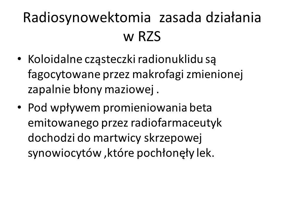 Radiosynowektomia zasada działania w RZS
