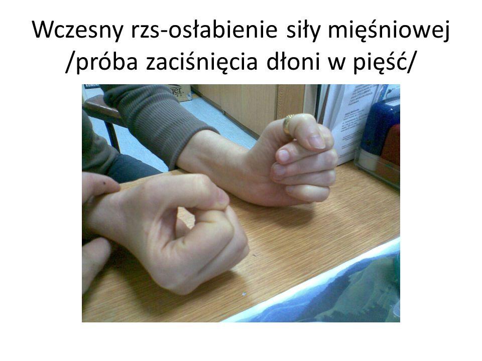 Wczesny rzs-osłabienie siły mięśniowej /próba zaciśnięcia dłoni w pięść/