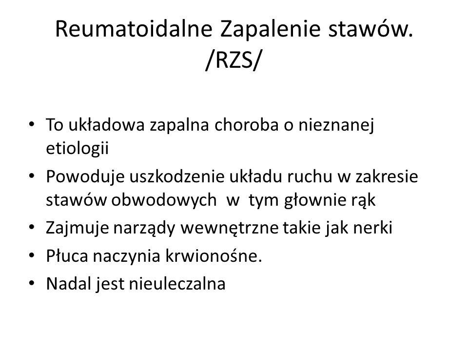 Reumatoidalne Zapalenie stawów. /RZS/