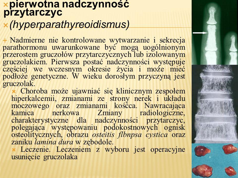 pierwotna nadczynność przytarczyc (hyperparathyreoidismus)