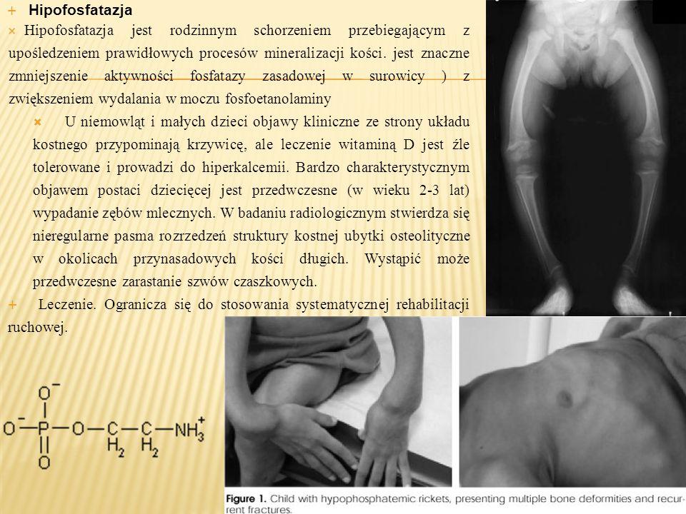 Hipofosfatazja