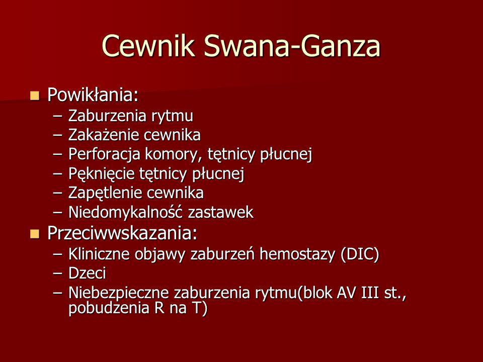 Cewnik Swana-Ganza Powikłania: Przeciwwskazania: Zaburzenia rytmu