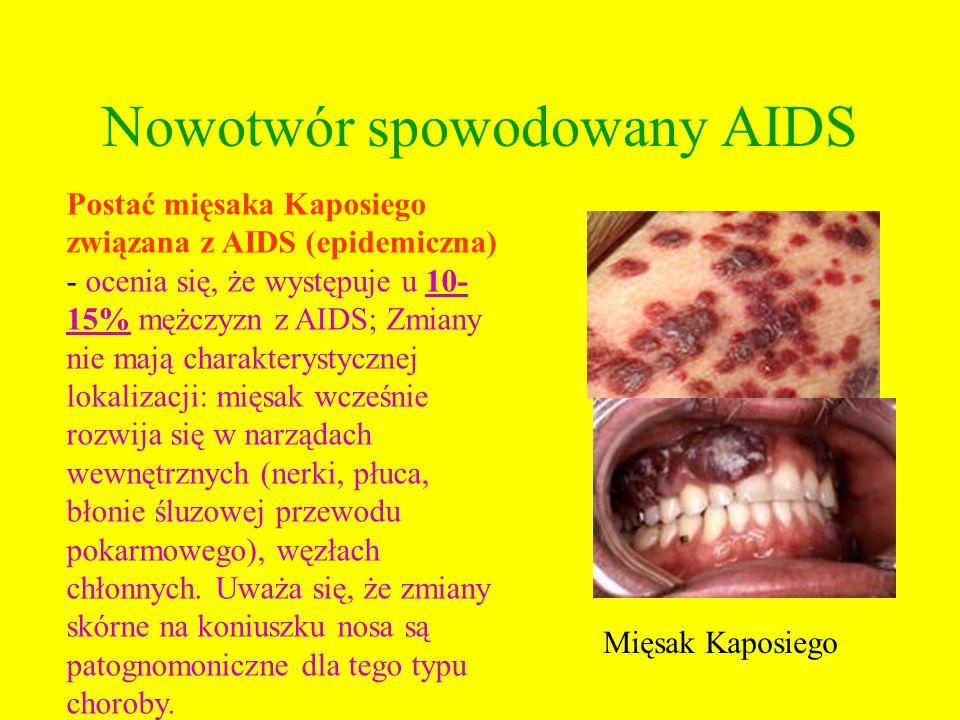 Nowotwór spowodowany AIDS