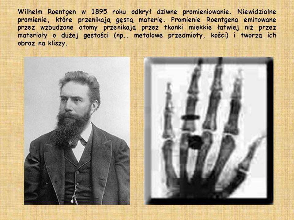 Wilhelm Roentgen w 1895 roku odkrył dziwne promieniowanie