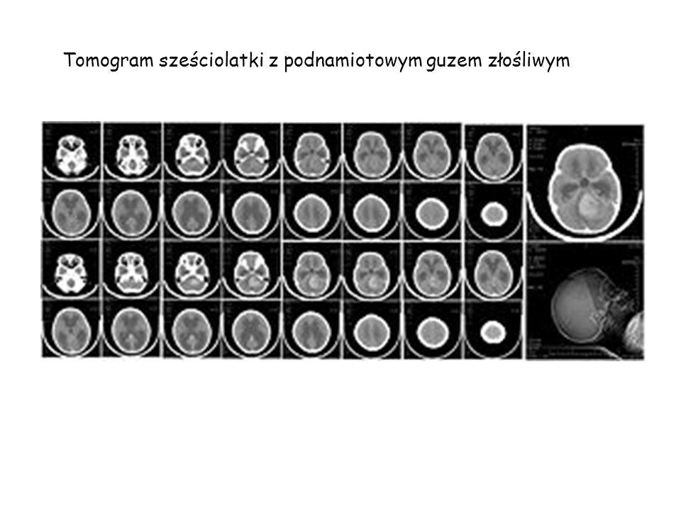 Tomogram sześciolatki z podnamiotowym guzem złośliwym medulloblastoma