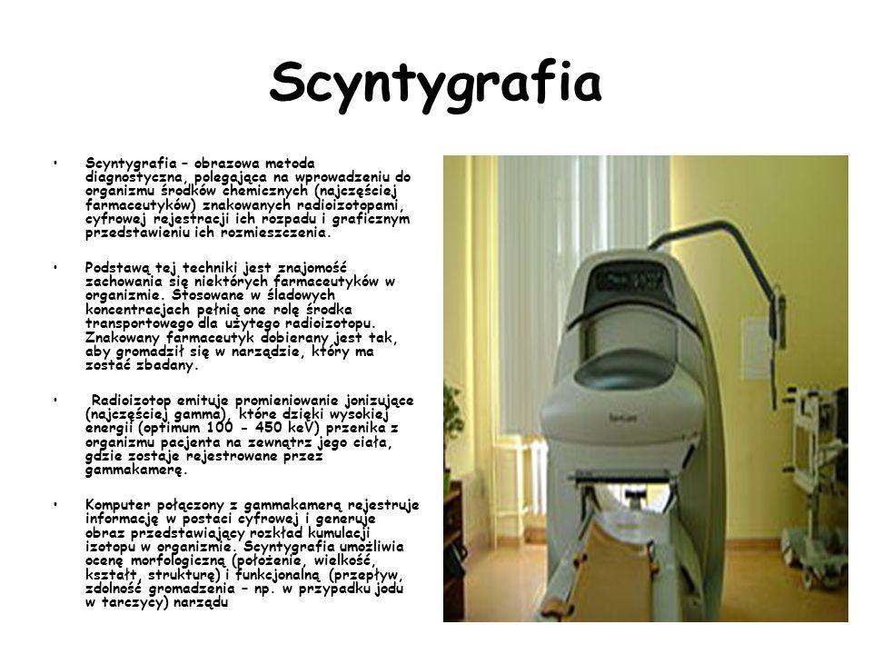 Scyntygrafia