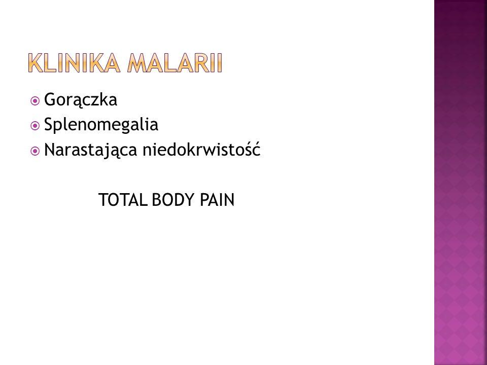 Klinika malarii Gorączka Splenomegalia Narastająca niedokrwistość