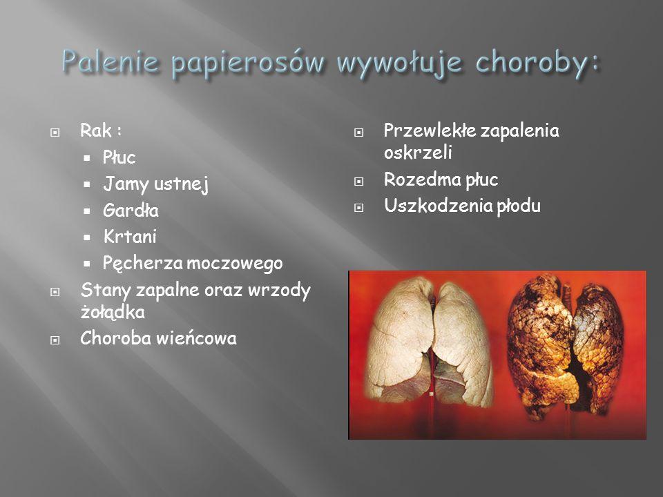 Palenie papierosów wywołuje choroby: