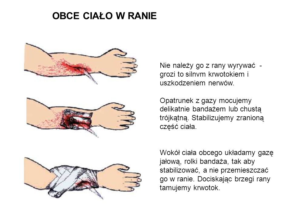 OBCE CIAŁO W RANIENie należy go z rany wyrywać - grozi to silnvm krwotokiem i uszkodzeniem nerwów.