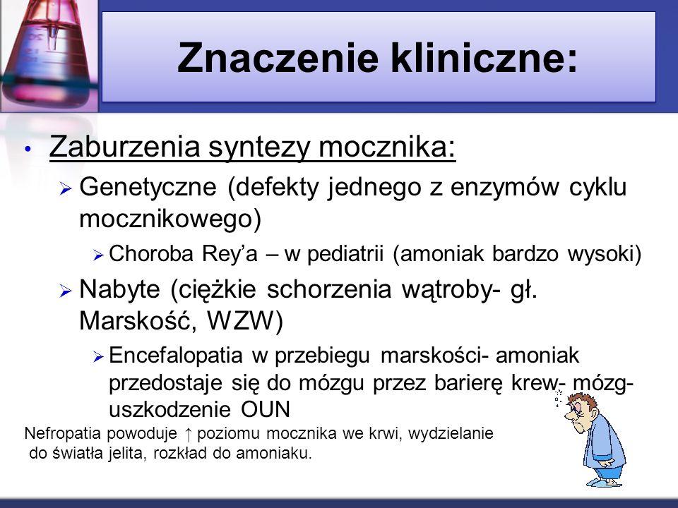 Znaczenie kliniczne: Zaburzenia syntezy mocznika: