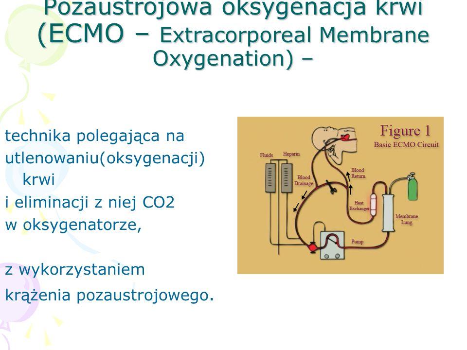 Pozaustrojowa oksygenacja krwi (ECMO – Extracorporeal Membrane Oxygenation) –