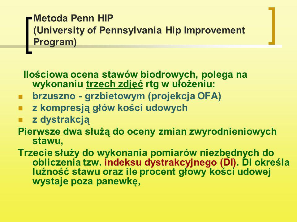 Metoda Penn HIP (University of Pennsylvania Hip Improvement Program)