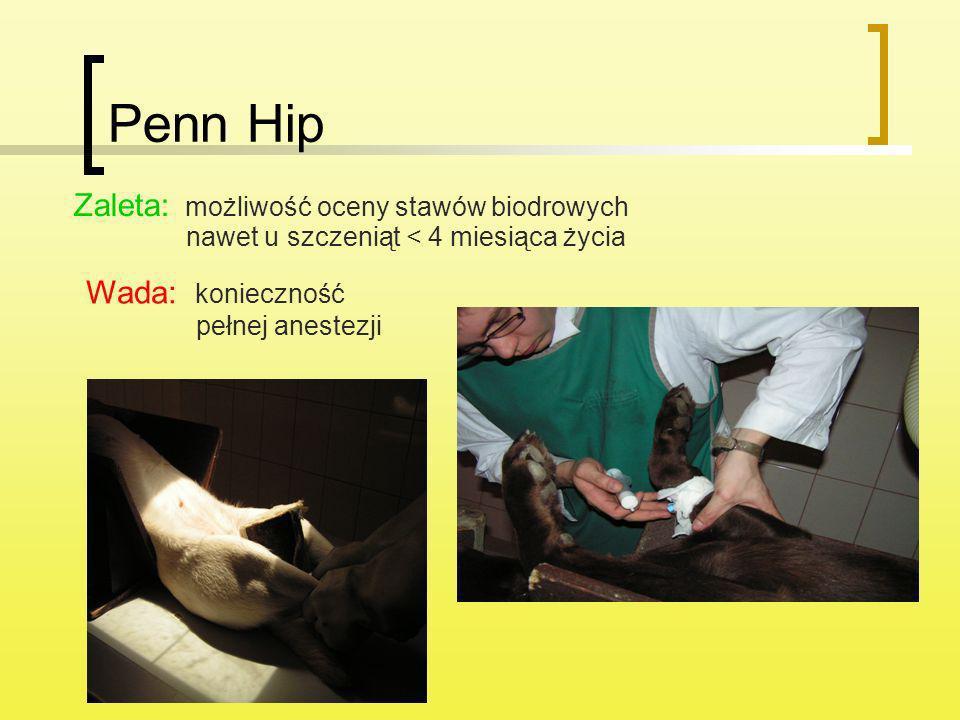 Penn Hip