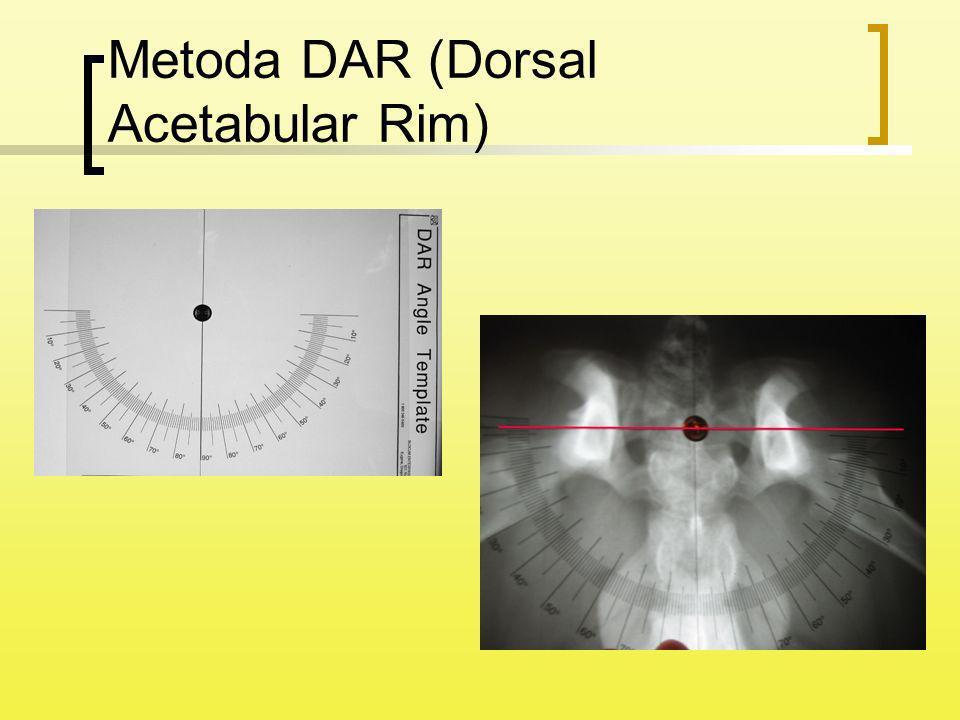 Metoda DAR (Dorsal Acetabular Rim)