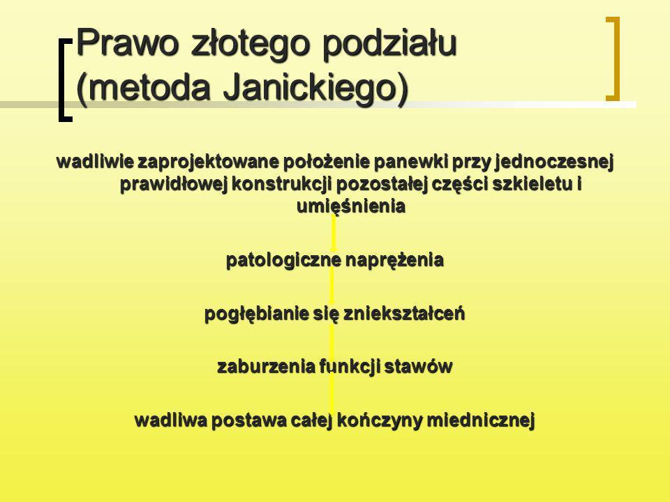 Prawo złotego podziału (metoda Janickiego)