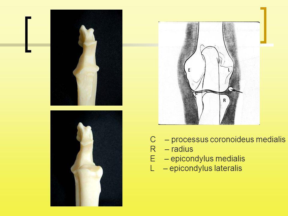 C – processus coronoideus medialis