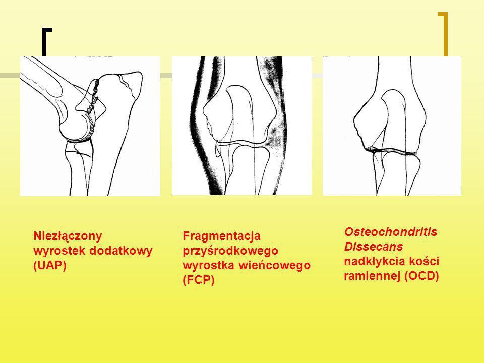 Osteochondritis Dissecans nadkłykcia kości ramiennej (OCD)