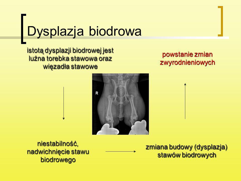 Dysplazja biodrowa istotą dysplazji biodrowej jest luźna torebka stawowa oraz więzadła stawowe. powstanie zmian zwyrodnieniowych.