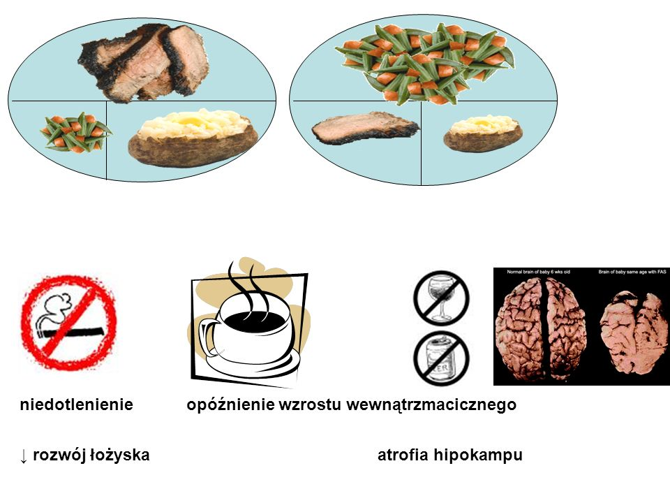 typowy posiłek prawidłowy posiłek