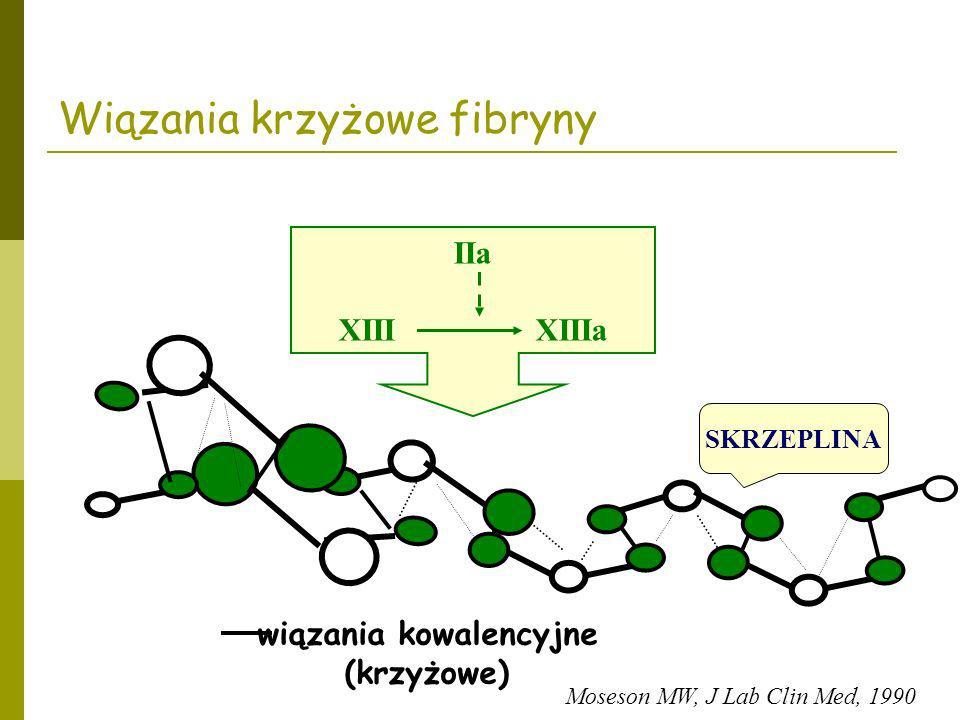 wiązania kowalencyjne