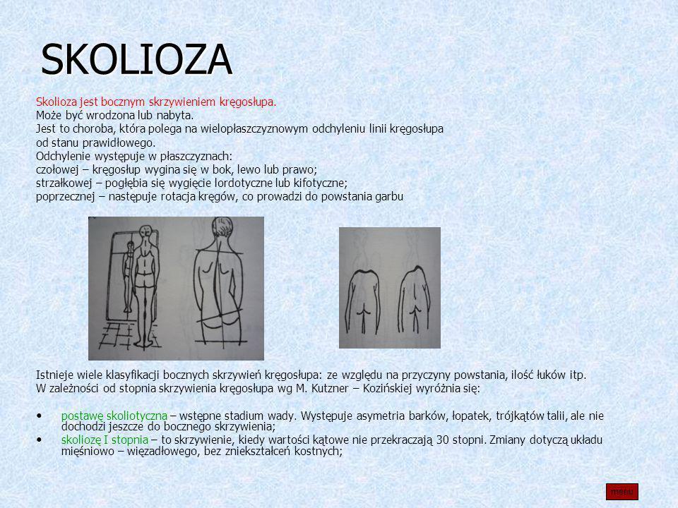 SKOLIOZA Skolioza jest bocznym skrzywieniem kręgosłupa.