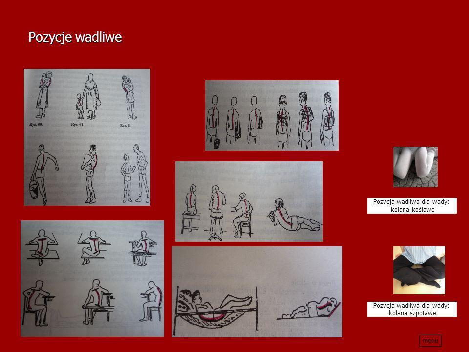 Pozycje wadliwe Pozycja wadliwa dla wady: kolana koślawe