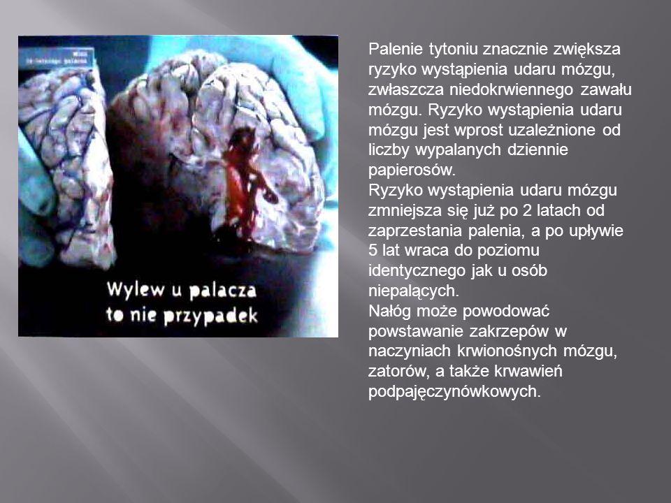 Palenie tytoniu znacznie zwiększa ryzyko wystąpienia udaru mózgu, zwłaszcza niedokrwiennego zawału mózgu.